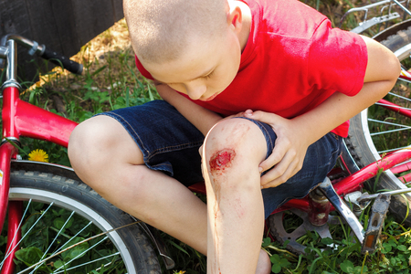 Broken wounded knee child. European boy in red T-shirt and denim shorts fell off bike and looks at wound abrasion. Children's summer holidays