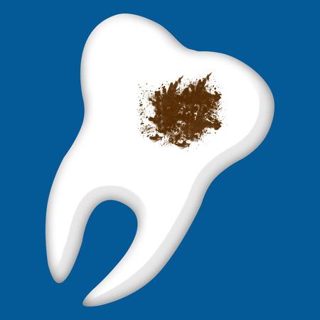 decayed teeth: Diente con Salpic�n