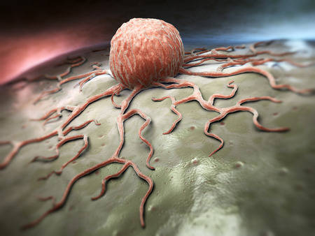 cancer research: Cancer cell Stock Photo
