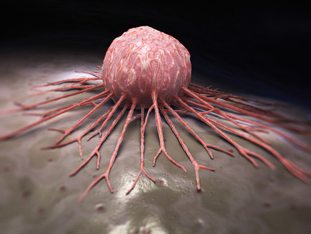 cancer cell: Cancer cell Stock Photo