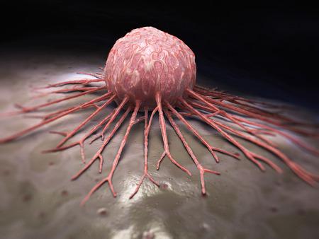 Krebs-Zelle