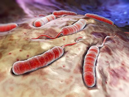 colera: Bacterias cholerae que causa el c�lera Foto de archivo
