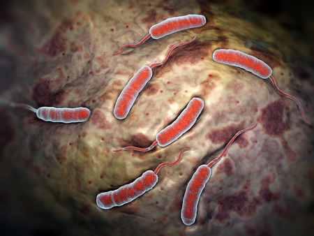 colera: Bacterias cholerae que causa el cólera Foto de archivo
