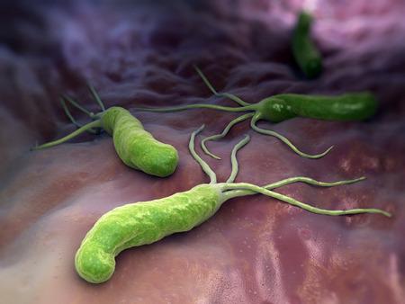 gastritis: HELICOBACTER PYLORI