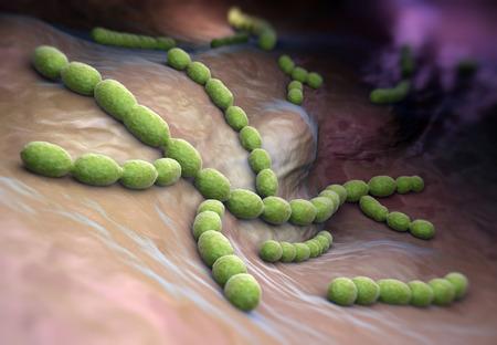 high scale: Streptococcus pneumoniae