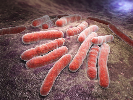 Mycobacterium tuberculosis is a pathogenic bacterial species in the family Mycobacteriaceae and the causative agent of most cases of tuberculosis 版權商用圖片 - 43793669