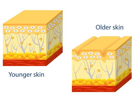 나이가 피부에있는 콜라겐의 감소 및 깨진 엘라스틴을 보여주는 젊은 피부와 피부 노화의 그림입니다. 스톡 콘텐츠 - 63310143