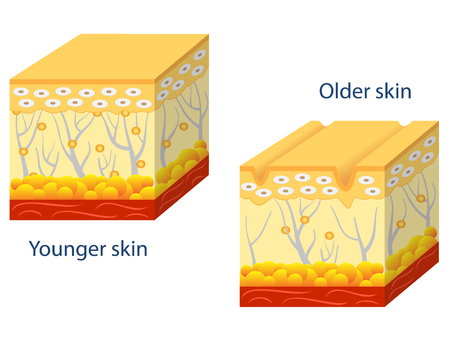 older: Illustration of younger skin and aging skin showing the decrease in collagen and broken elastin in older skin. Illustration