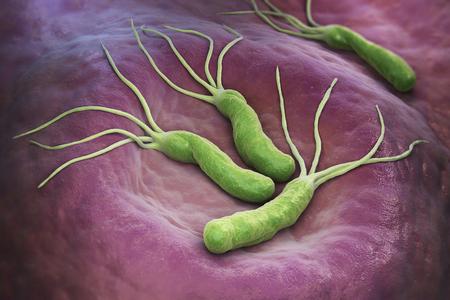 헬리코박터 파일로리 (Helicobacter Pylori)는 위장에서 발견되는 그람 음성균의 미세 국소 박테리아입니다. 3D 일러스트 레이션 스톡 콘텐츠