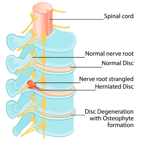 Disc herniation at a human vertebral column