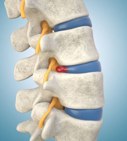 Human lumbar spine model demonstrating herniated disc, pressure nerve root causing back pain. 3D illustration Stock Photo