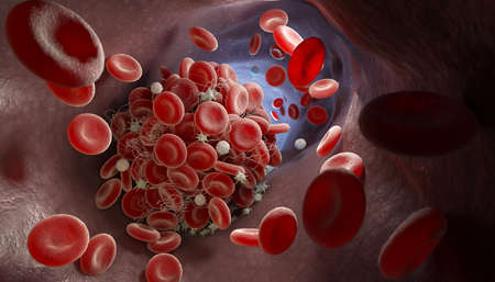 Depiction of a blood clot forming inside a blood vessel. 3D illustration
