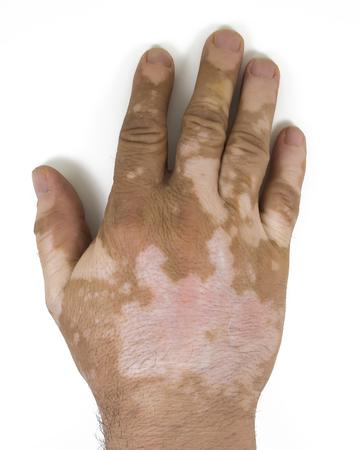 skin depigmentation on mans hand