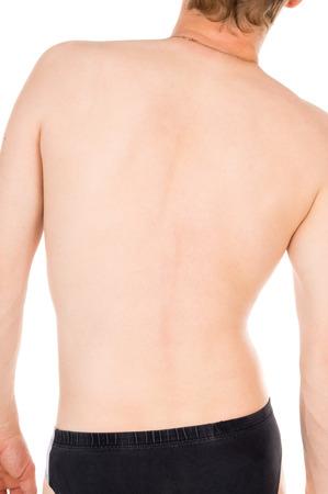 pacientes: curva de la columna vertebral, la espalda aisladas sobre fondo blanco Foto de archivo