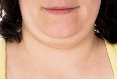 insufficient: girl shows off his big chin isolated on white background Stock Photo
