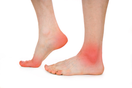 suffered: male foot, heel, feet isolated on white background Stock Photo