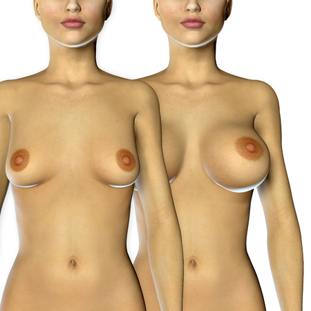 3d rendered illustration Breast Enlargement with Uplift surgery  before and after Stock Photo
