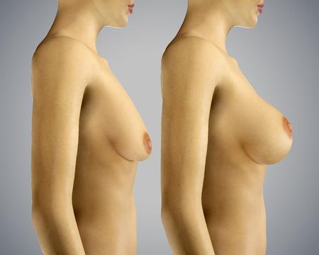 beaux seins: 3d élargissement du sein illustration rendue avec la chirurgie Uplift avant et après