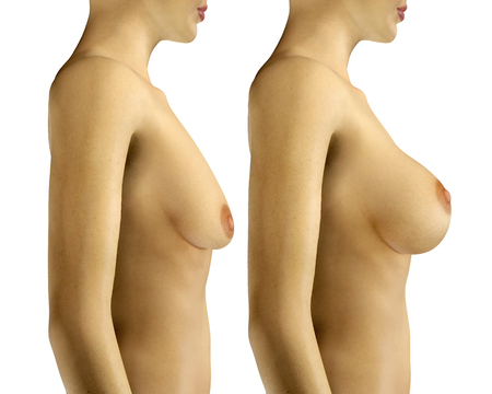 beaux seins: 3d �largissement du sein illustration rendue avec la chirurgie Uplift avant et apr�s