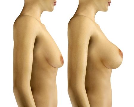 senos: 3d rindió la ilustración de la ampliación de mama con cirugía de elevación de antes y después