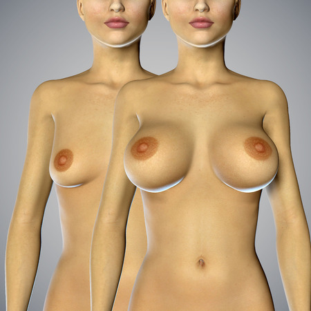 beautiful breasts: 3d rendered illustration Breast Enlargement with Uplift surgery  before and after Stock Photo