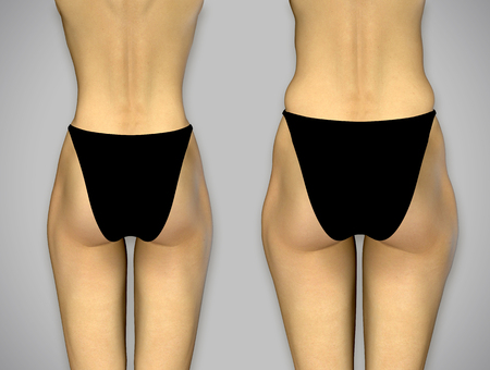 butt: 3d render photorealistic female buttocks before and after treatment