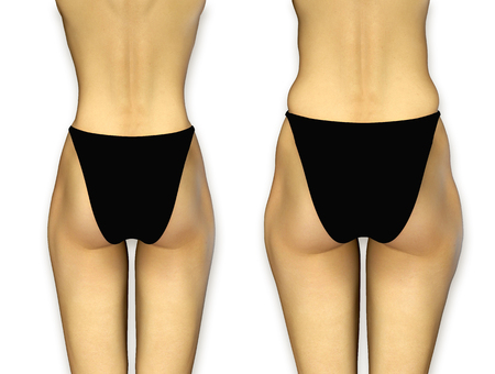 perfect female body: 3d render photorealistic female buttocks before and after treatment