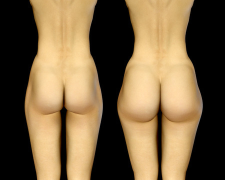 3d render photorealistic female buttocks before and after treatment
