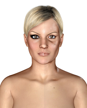 complexion: 3d illustration of a same healthly and damaged skin Stock Photo