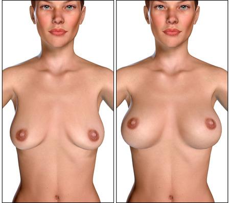 girls naked: 3D иллюстрации увеличение груди с Uplift хирургии до и после Фото со стока