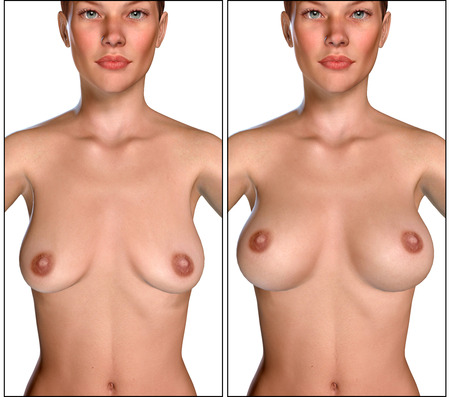 big breast: 3d illustration Breast Enlargement with Uplift surgery  before and after