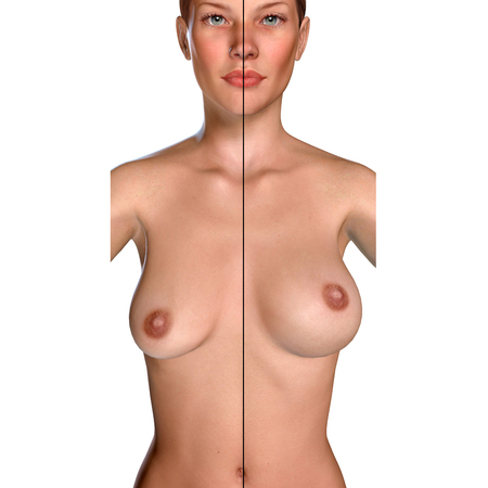 3d illustration Breast Enlargement with Uplift surgery  before and after