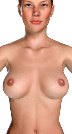 female breast: 3d illustration Breast Enlargement with Uplift surgery  before and after