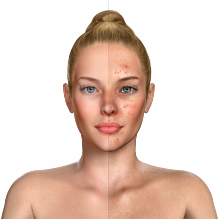 3d illustration of a woman before and after acne treatment procedure