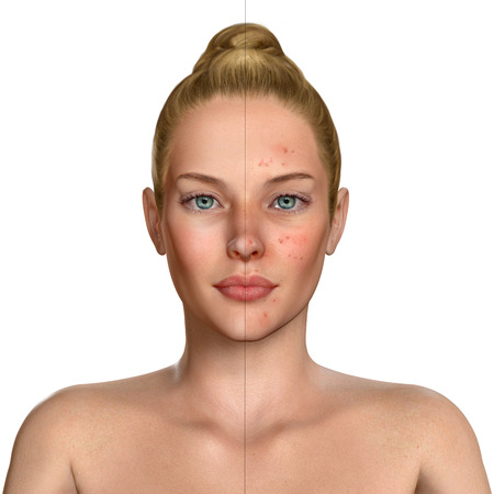 oily: 3d illustration of a woman before and after acne treatment procedure