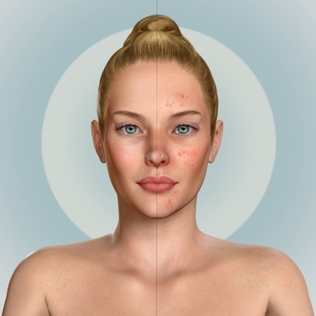 breakout: 3d illustration of a woman before and after acne treatment procedure