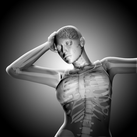 3D render of a medical female figure holding head in pain