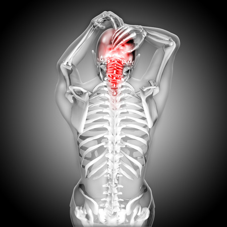 3D render of a female figure  with head and neck pain Stock Photo