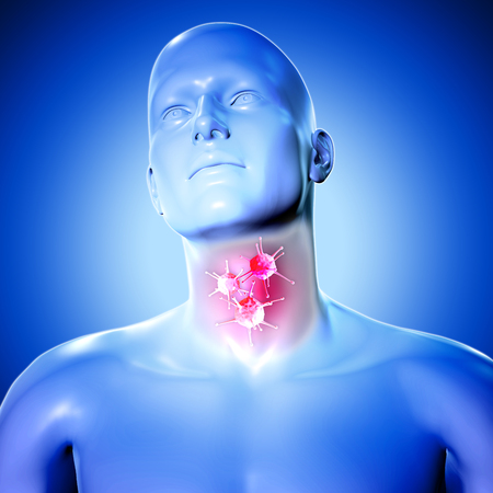 3d medical figure with virus cells on sore throat