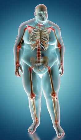3d illustration of Overweight human anatomy with heighleited painful joints