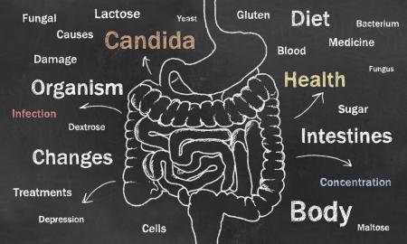 oorzaken: Woorden van Darm Voorwaarde geschetst op een Blackboard Stockfoto