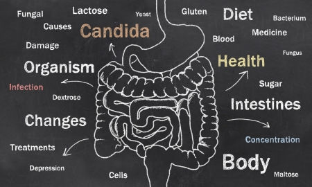 intestines: Words of Intestine Condition sketched on a Blackboard Stock Photo