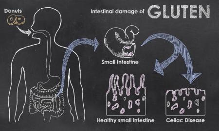 intolerancia: Da�o intestinal de gluten en una pizarra
