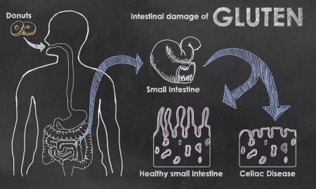 malabsorption: Intestinal Damage of Gluten on a Blackboard