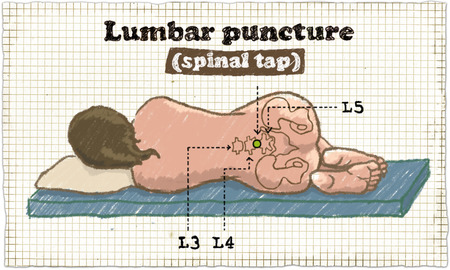 Spinal Puncture Illustration