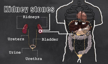 kidney stones: Illustration of Kidney Stones with Classic old drawing Style