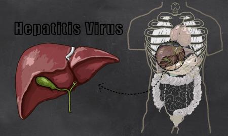 digestive: Hepatitis Liver Illustration