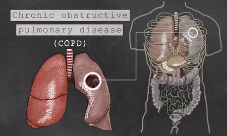 폐와 몸통이 칠판에 만성 폐색 성 폐 질환 스톡 콘텐츠