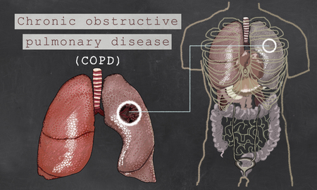 Chronic Obstructive Pulmonary Disease with Lungs and Torso on Blackboard