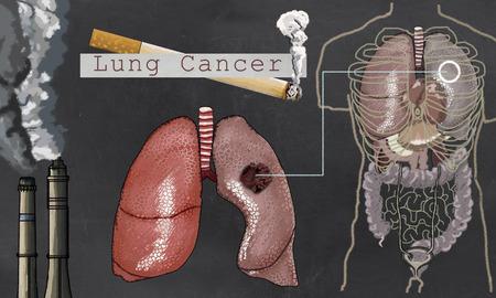 Illustration über Lungenkrebs mit Zigarette und Torso auf Tafel Standard-Bild - 84487768